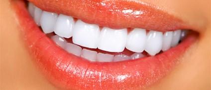 ¿Qué ofrece el blanqueamiento dental?