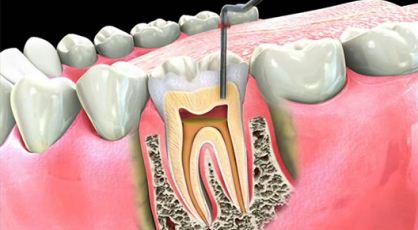 Me duele un diente, ¿necesito una Endodoncia?