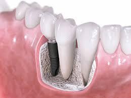 Implantes dentales ¿es mi mejor opción?