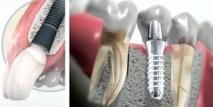 Es posible tener un diente el mismo día de su extracción
