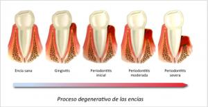 gingivitis periodontitis