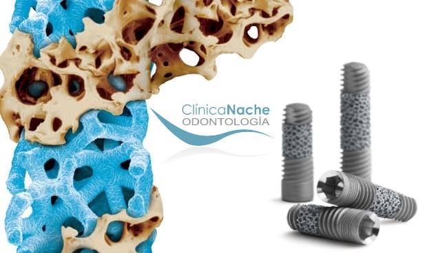 Busca siempre implantes dentales con garantías